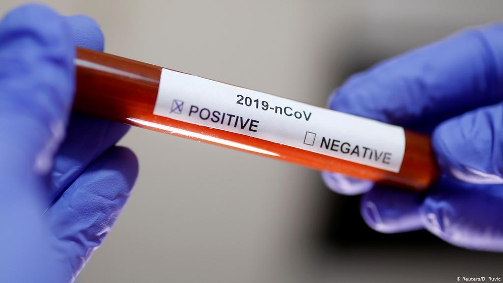 Глава НАОЗ: Лаборатории могут проводить до 5000 тестов на COVID в день